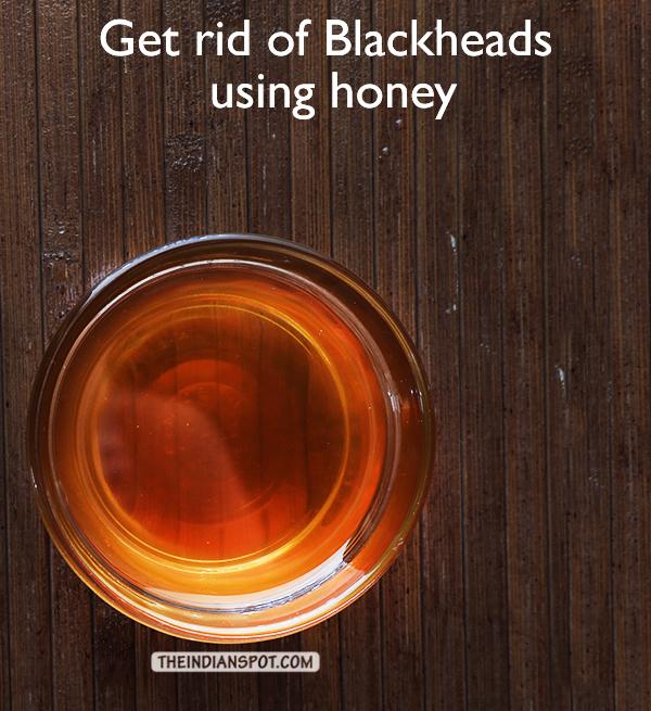Get rid of Blackheads naturally using honey