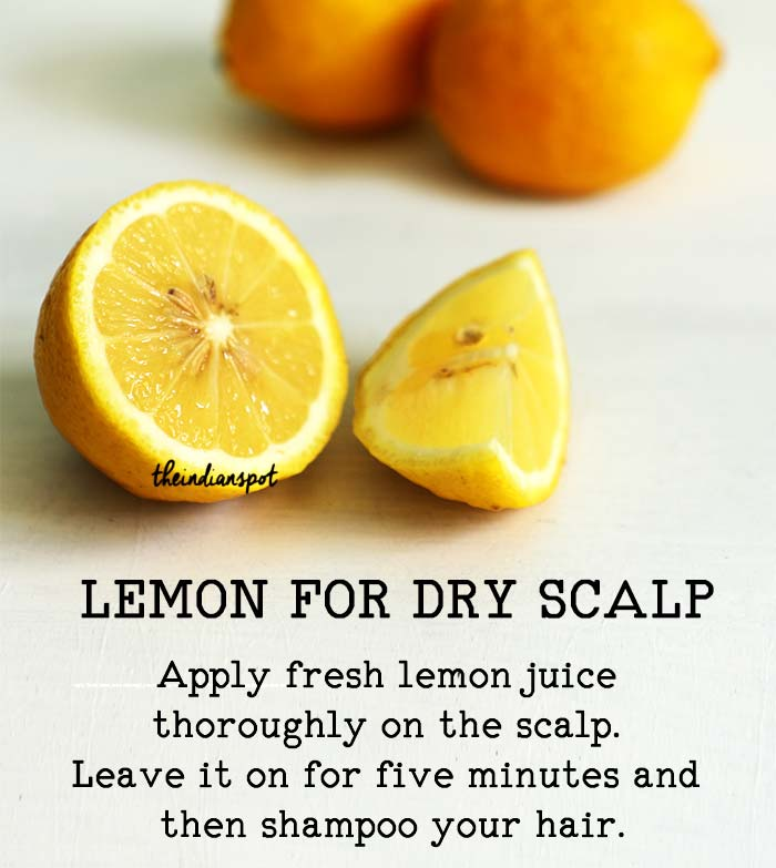 Treat dry, itchy scalp with lemon