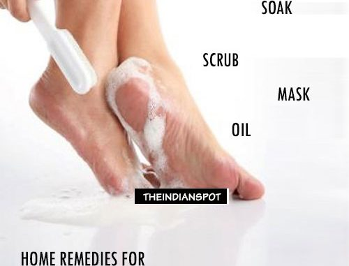 HOME REMEDIES FOR DRY, CRACKED HEELS
