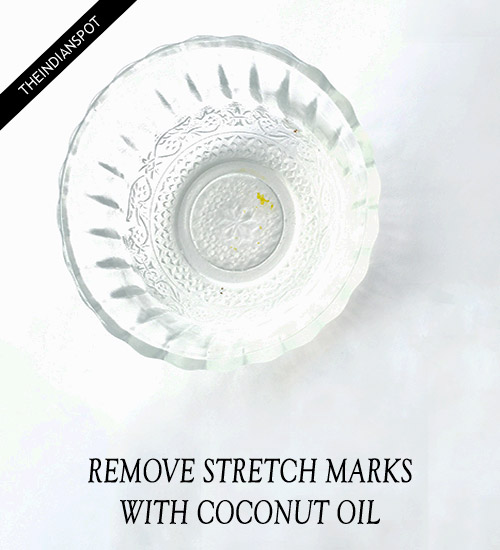 Remove Stretch Marks with coconut oil