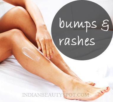 Natural remedies to treat Bikini bumps or Razor burns
