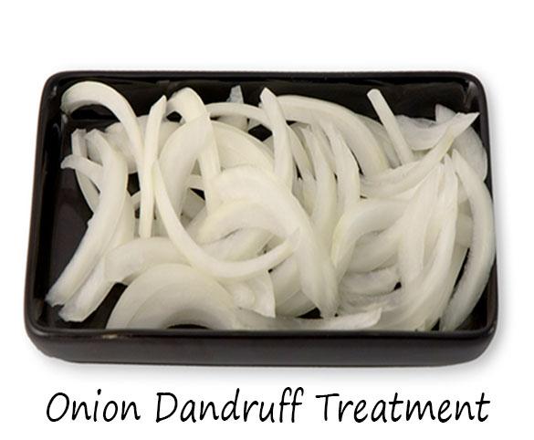 Onion Dandruff Treatment
