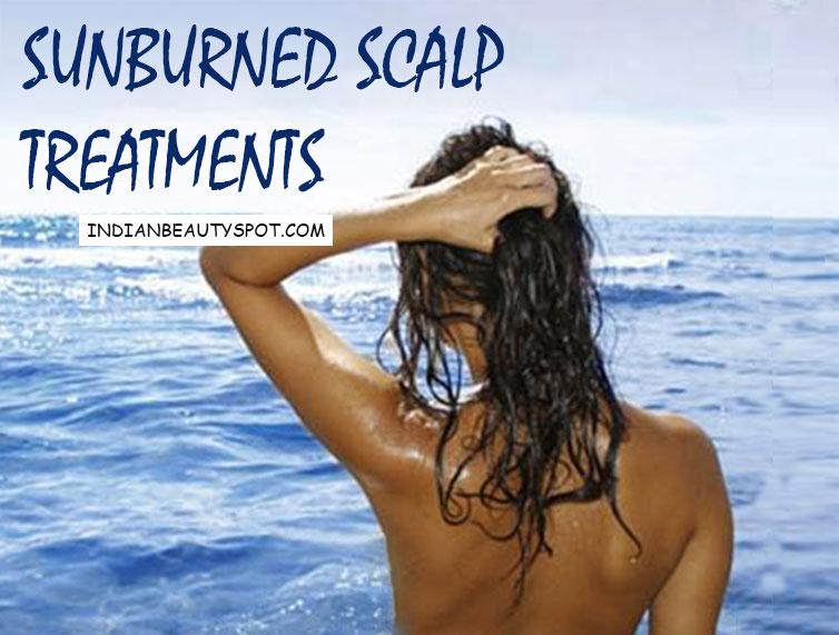 Sunburned scalp