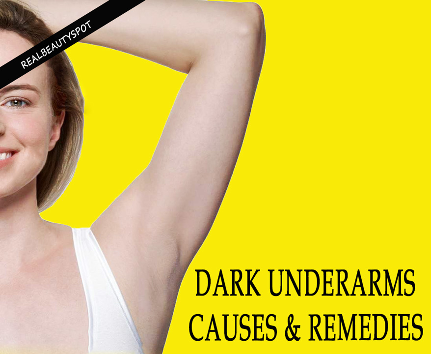 Dark Underarms Causes and Natural Remedies