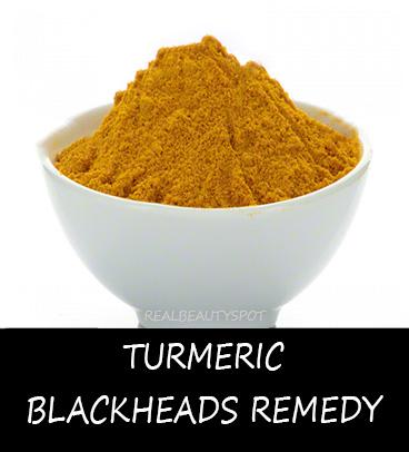 Turmeric blackheads remedy