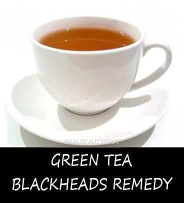 Green tea blackheads remedy