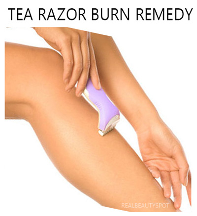 Treat rashes and bumps after shaving.
