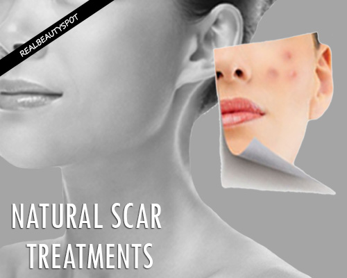 Natural Scar Removal Treatments