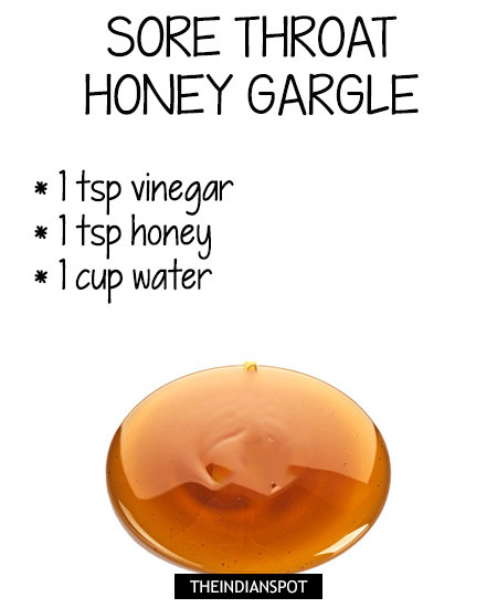 Honey and ACV recipe for sore throat: