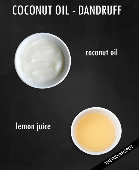 Coconut oil and lemon juice hair mask for sticky dandruff on scalp -