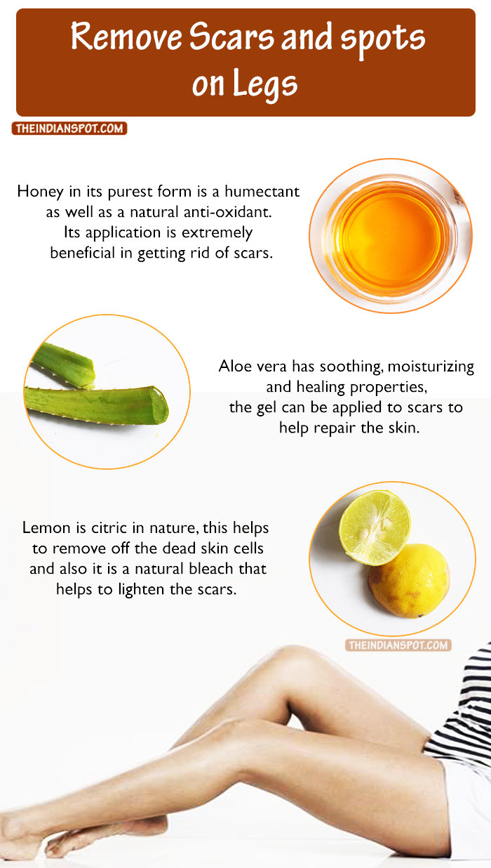 How To Remove Scars On Legs Naturally At Home