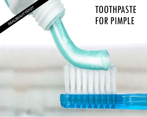 TOOTHPASTE FOR PIMPLES AND SCARS