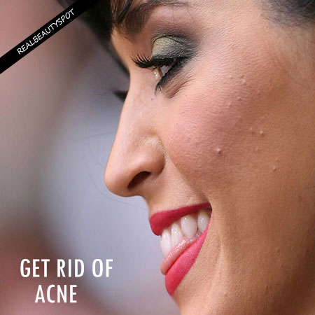 POSSIBLE REASONS YOU CANT GET RID OF YOUR ACNE