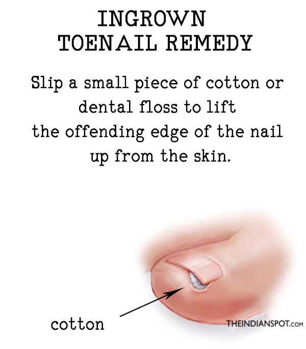 NATURAL REMEDY FOR INGROWN TOENAILS - THE INDIAN SPOT