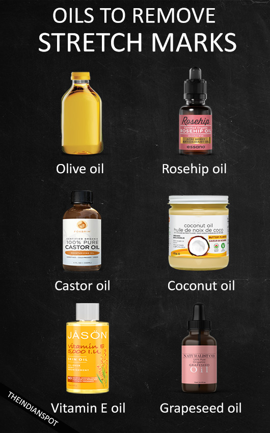 OILS TO REMOVE STRETCH MARKS