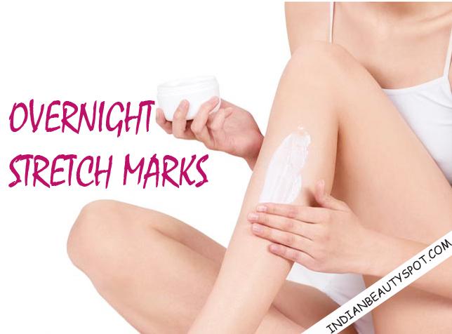 Overnight stretch marks -