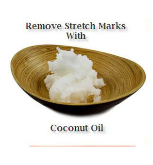 Stretch Marks Home remedy with coconut oil