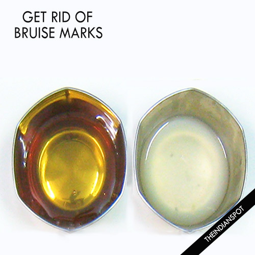 HOME REMEDIES TO GET RID OF BRUISE