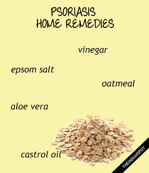WAYS TO TREAT PSORIASIS WITH NATURAL REMEDIES