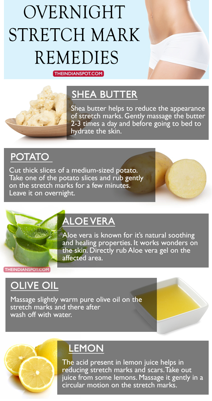 Natural Overnight stretch marks Remedies