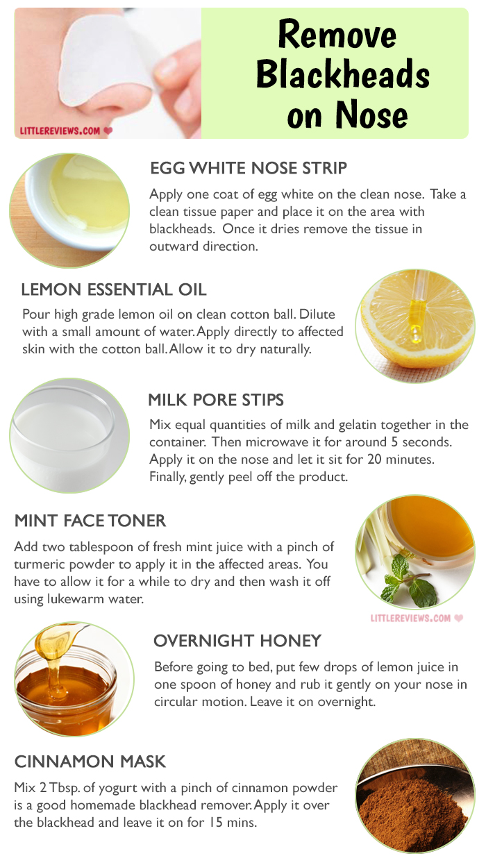 How To Get Rid Of Blackheads advise