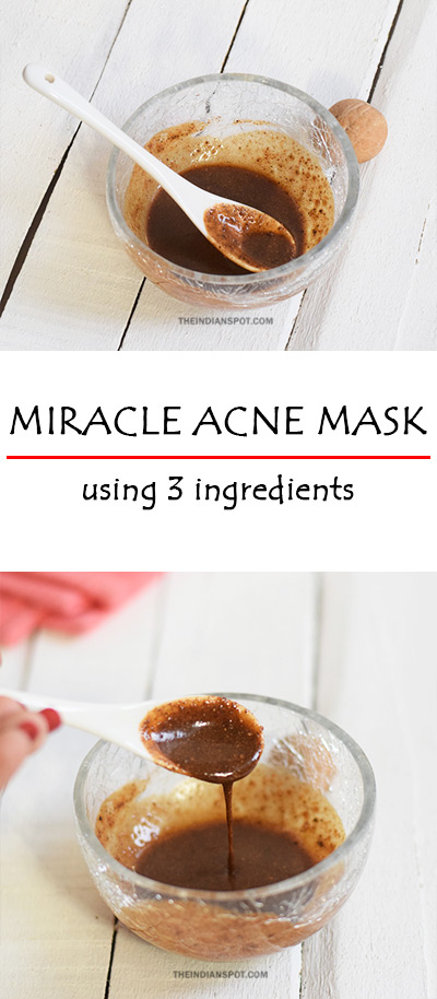 FAVOURITE ACNE MIRACLE MASK! ONLY 3 INGREDIENTS!
