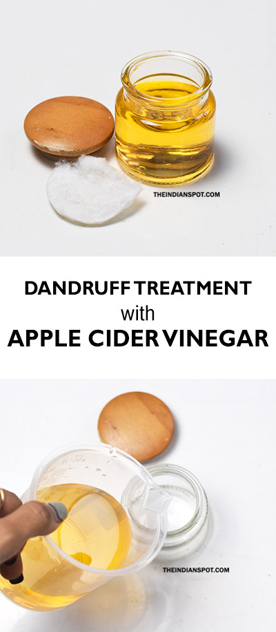 Homemade Dandruff Treatment With Apple Cider Vinegar