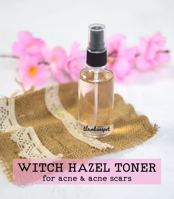 BEAUTY DIY: WITCH HAZEL TONER FOR ACNE AND ACNE SCARS