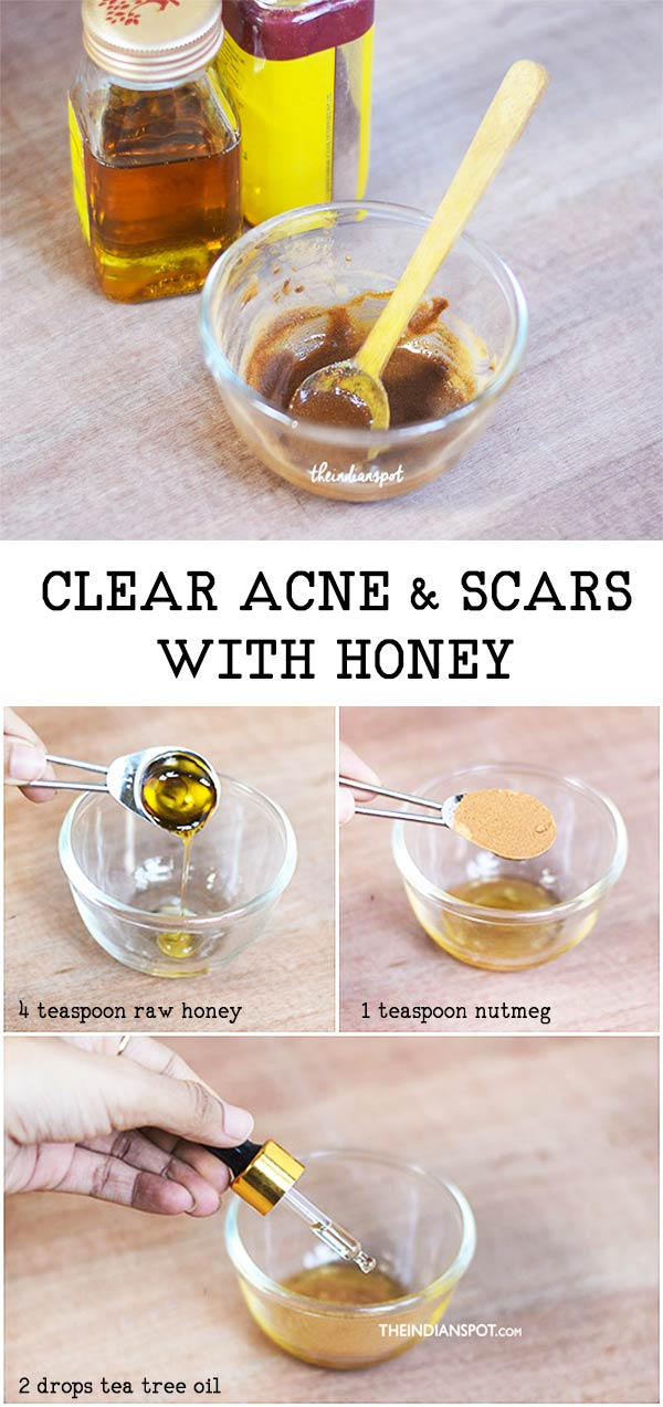 HONEY TO GET RID OF ACNE & SCARS
