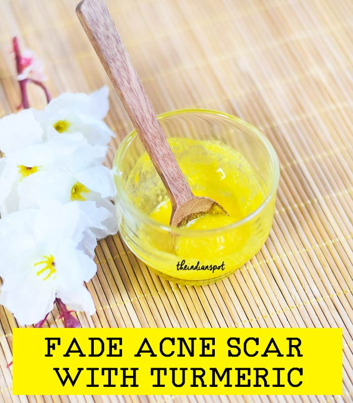 Naturally Fade Acne Scar with turmeric