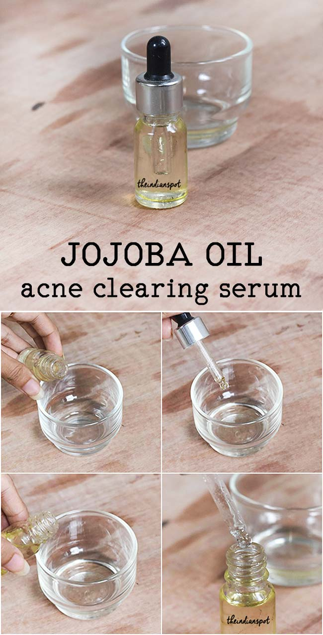 JOJOBA OIL ACNE CLEARING SERUM