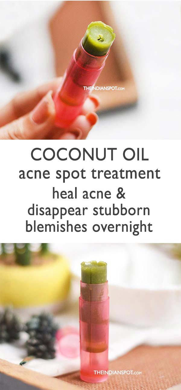 Clear Acne with Homemade Coconut oil Acne Spot Treatment