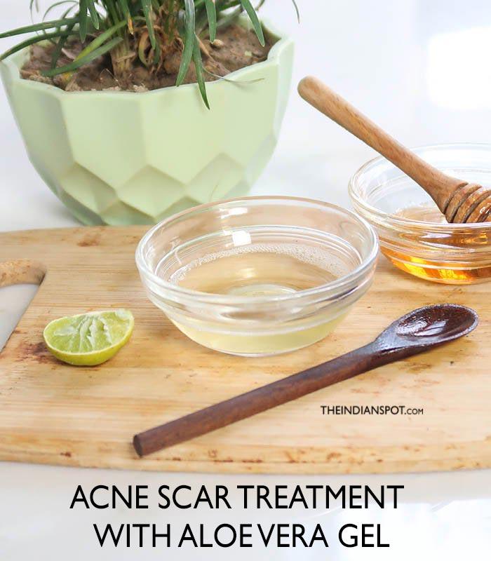 ACNE SCAR TREATMENT WITH ALOE VERA GEL